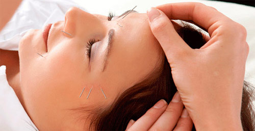 Improve your well-being with acupuncture